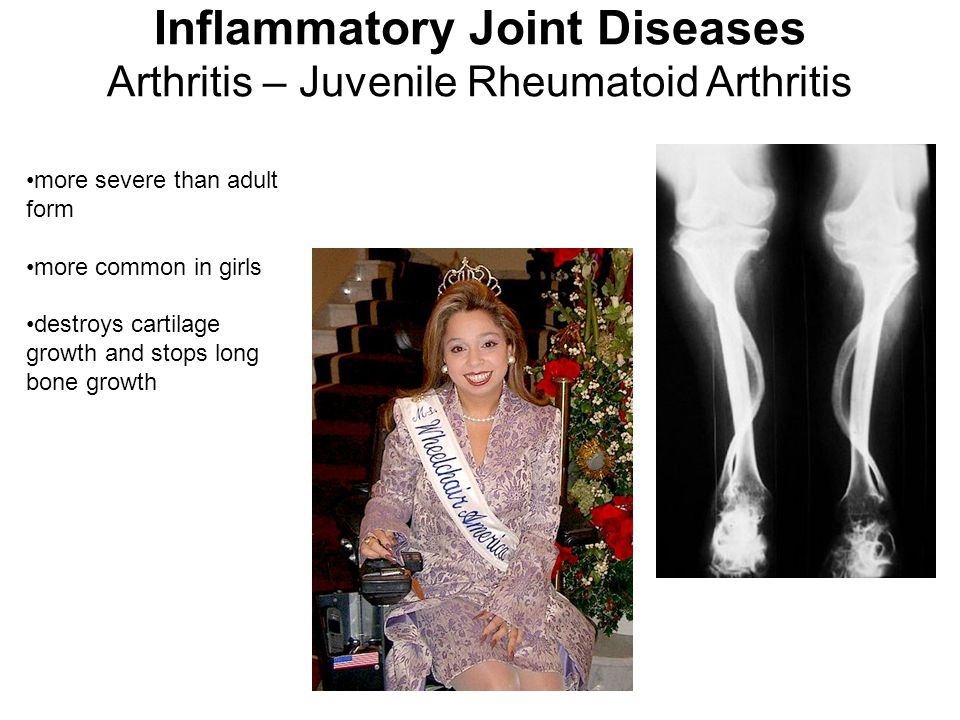 more severe than adult form more common in girls destroys cartilage growth and stops long bone growth Inflammatory Joint Diseases Arthritis – Juvenile Rheumatoid Arthritis