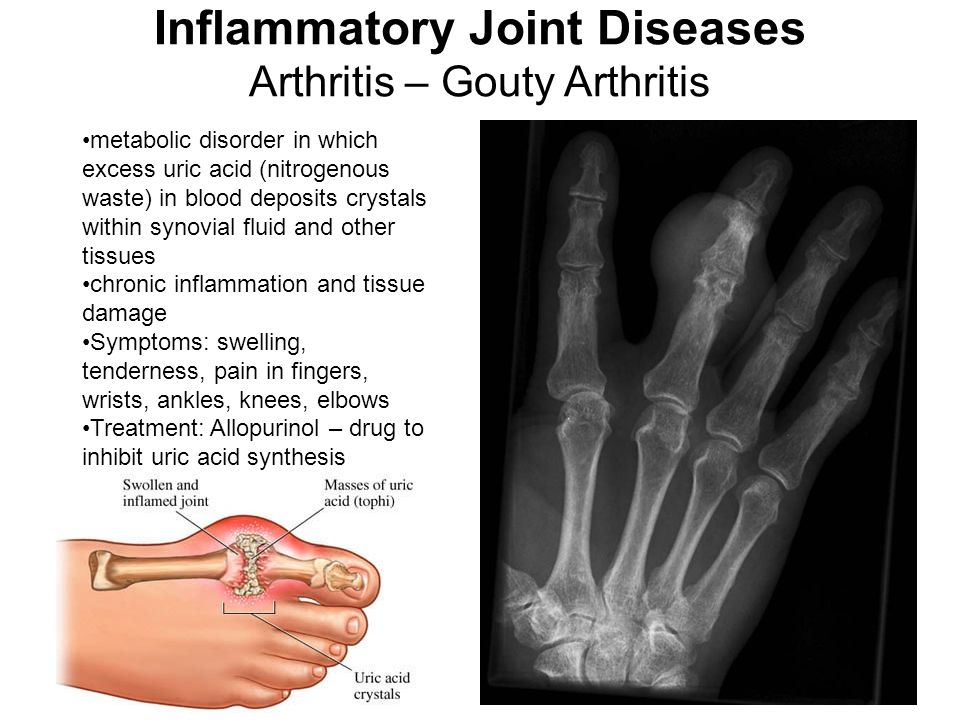 metabolic disorder in which excess uric acid (nitrogenous waste) in blood deposits crystals within synovial fluid and other tissues chronic inflammation and tissue damage Symptoms: swelling, tenderness, pain in fingers, wrists, ankles, knees, elbows Treatment: Allopurinol – drug to inhibit uric acid synthesis Inflammatory Joint Diseases Arthritis – Gouty Arthritis