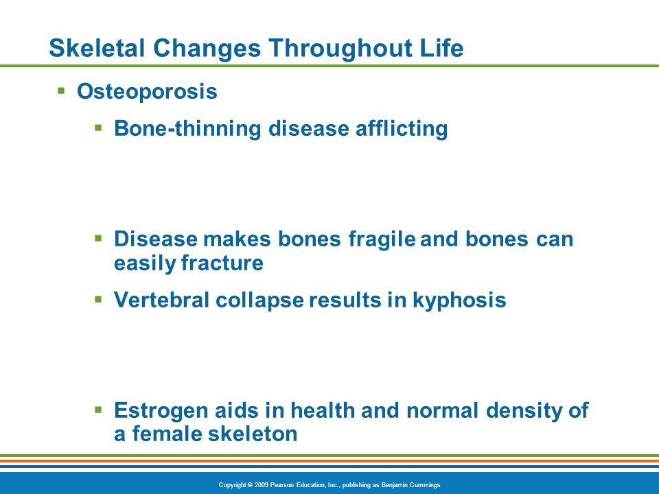 Copyright © 2009 Pearson Education, Inc., publishing as Benjamin Cummings Skeletal Changes Throughout Life  Osteoporosis  Bone-thinning disease afflicting  Disease makes bones fragile and bones can easily fracture  Vertebral collapse results in kyphosis  Estrogen aids in health and normal density of a female skeleton