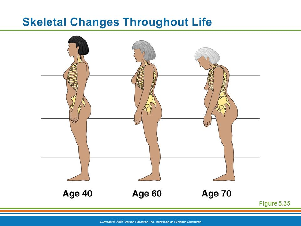 Copyright © 2009 Pearson Education, Inc., publishing as Benjamin Cummings Skeletal Changes Throughout Life Figure 5.35