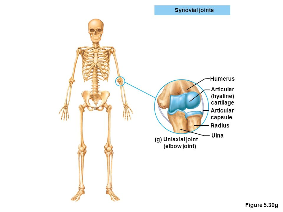 Figure 5.30g Synovial joints Humerus Articular (hyaline) cartilage Articular capsule Radius Ulna (g) Uniaxial joint (elbow joint)