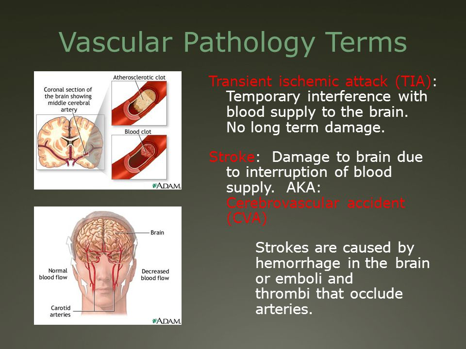 Health Sciences 1101 Medical Terminology Module 5 The Cardiovascular