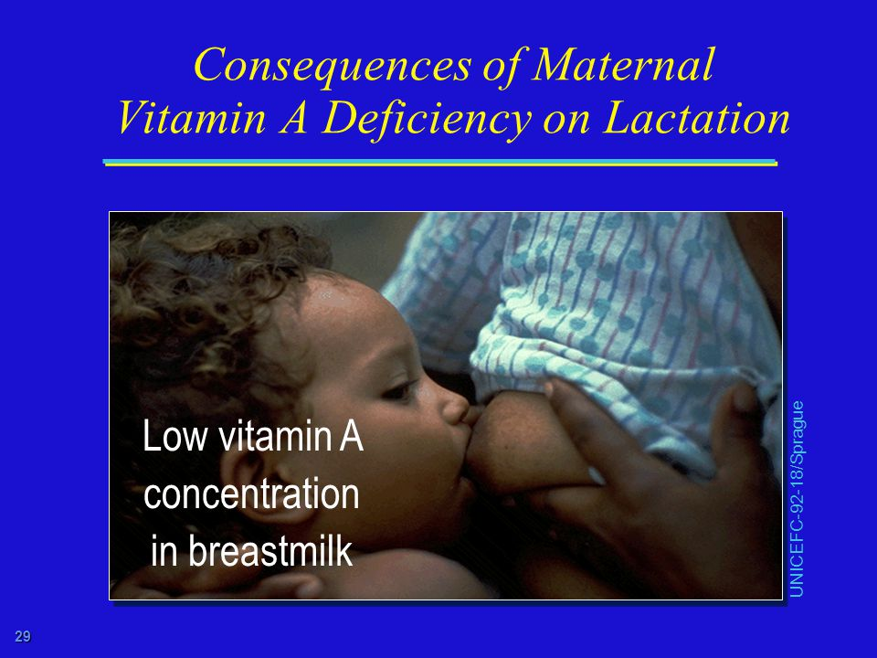 29 Consequences of Maternal Vitamin A Deficiency on Lactation UNICEFC-92-18/Sprague Low vitamin A concentration in breastmilk