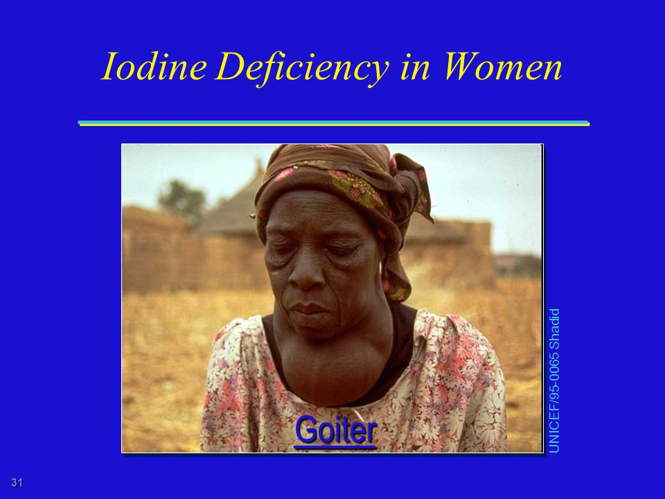 31 Iodine Deficiency in Women UNICEF/ Shadid Goiter