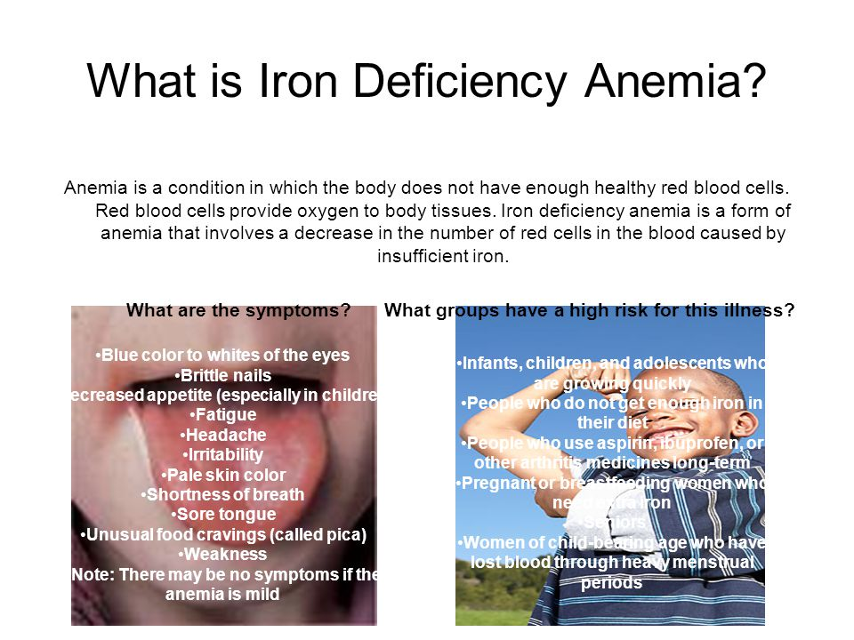Iron Deficiency Anemia By: Tiffany Davis & Chanelle