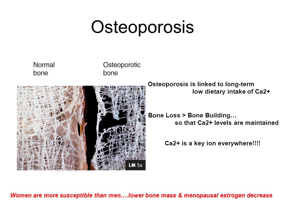 Osteoporosis Osteoporosis is linked to long-term low dietary intake of Ca2+ Bone Loss > Bone Building… so that Ca2+ levels are maintained Ca2+ is a key ion everywhere!!!.