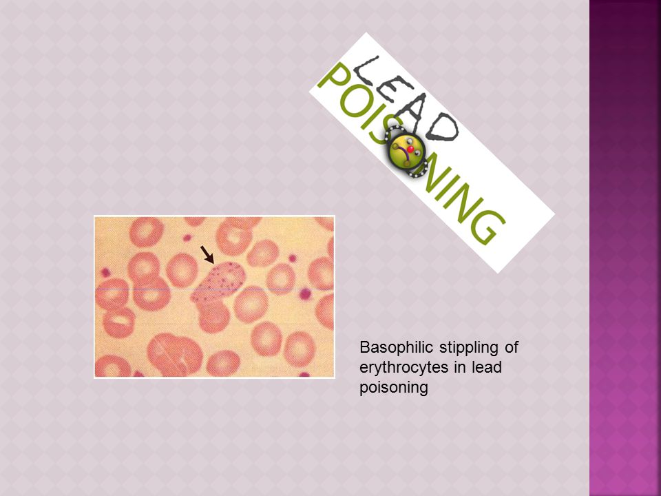 Basophilic stippling of erythrocytes in lead poisoning
