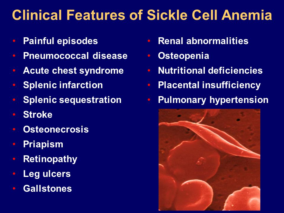 Clinical Features of Sickle Cell Anemia Painful episodes Pneumococcal disease Acute chest syndrome Splenic infarction Splenic sequestration Stroke Osteonecrosis Priapism Retinopathy Leg ulcers Gallstones Renal abnormalities Osteopenia Nutritional deficiencies Placental insufficiency Pulmonary hypertension