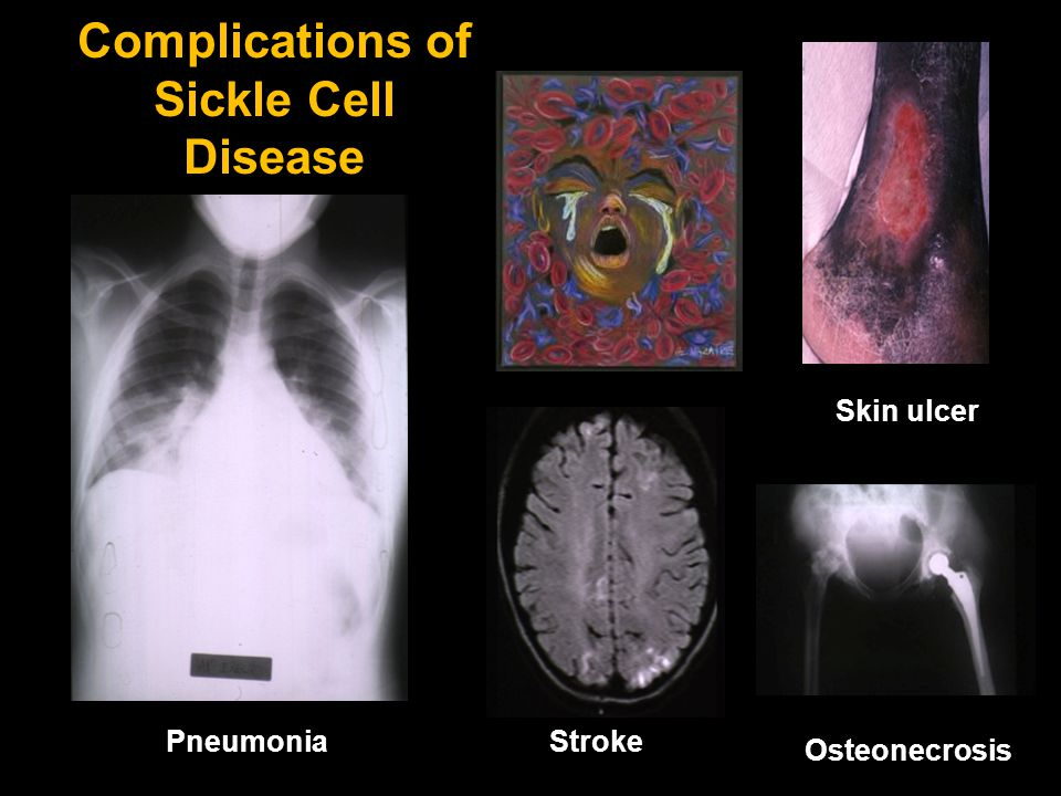 Pneumonia Stroke Skin ulcer Osteonecrosis Complications of Sickle Cell Disease