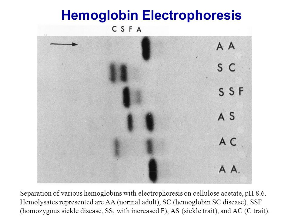 Separation of various hemoglobins with electrophoresis on cellulose acetate, pH 8.6.
