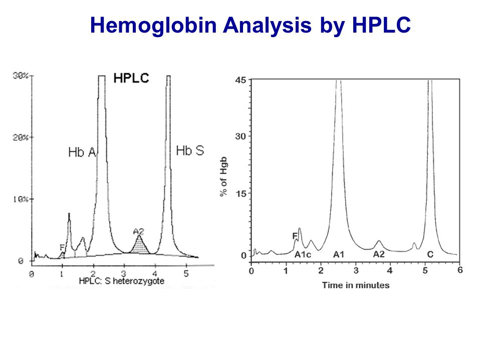 Hemoglobin Analysis by HPLC