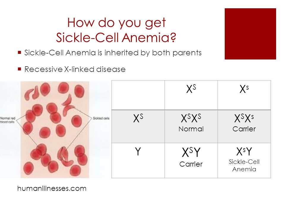 Sickle cell anemia sex linked trait