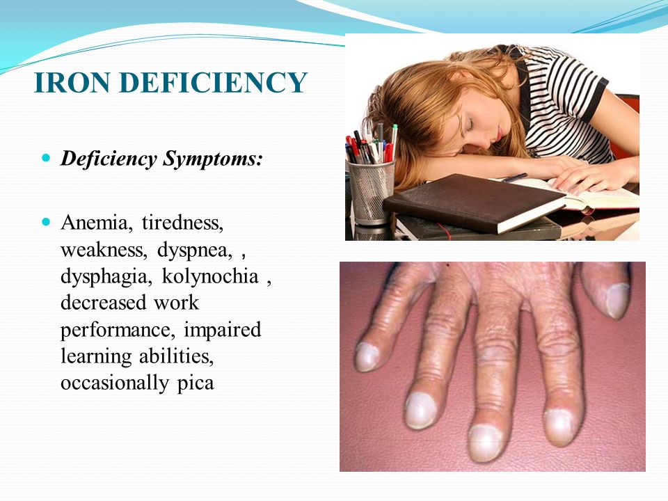 IRON DEFICIENCY Deficiency Symptoms: Anemia, tiredness, weakness, dyspnea,, dysphagia, kolynochia, decreased work performance, impaired learning abilities, occasionally pica