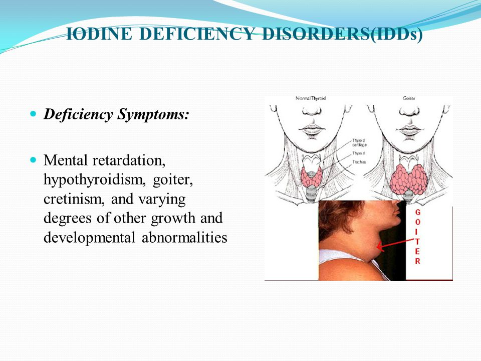 IODINE DEFICIENCY DISORDERS(IDDs) Deficiency Symptoms: Mental retardation, hypothyroidism, goiter, cretinism, and varying degrees of other growth and developmental abnormalities