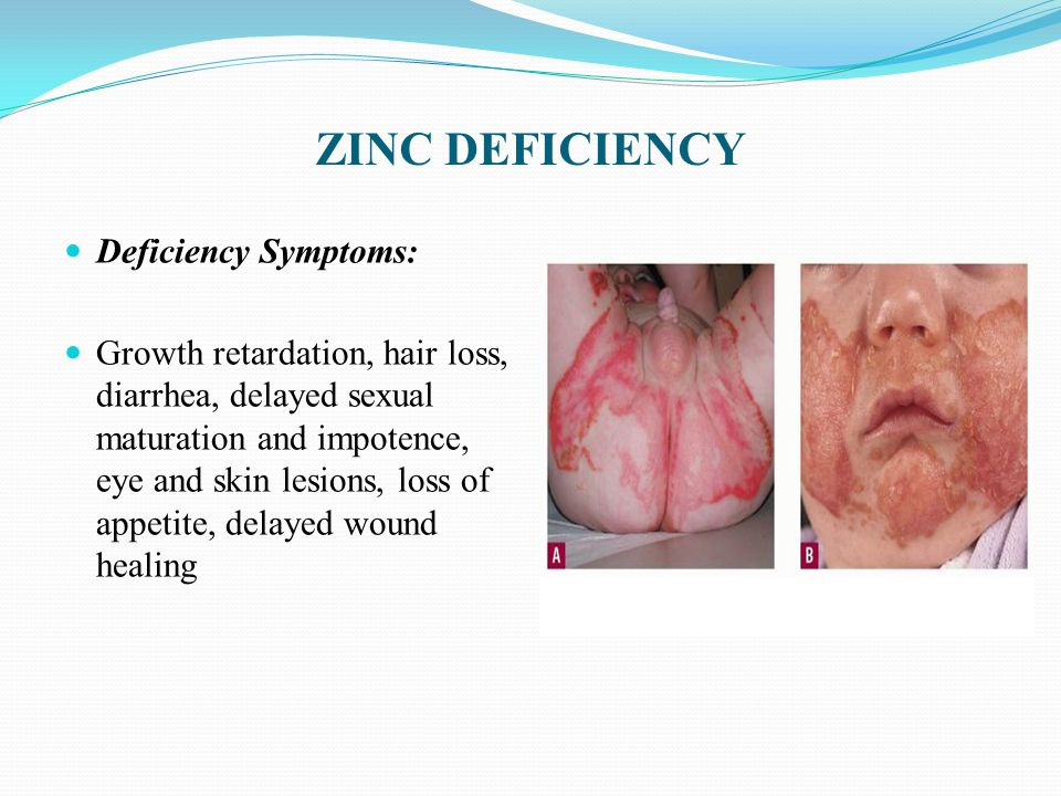 ZINC DEFICIENCY Deficiency Symptoms: Growth retardation, hair loss, diarrhea, delayed sexual maturation and impotence, eye and skin lesions, loss of appetite, delayed wound healing