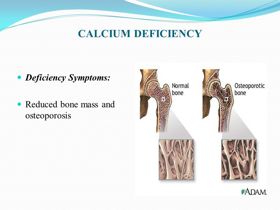 CALCIUM DEFICIENCY Deficiency Symptoms: Reduced bone mass and osteoporosis