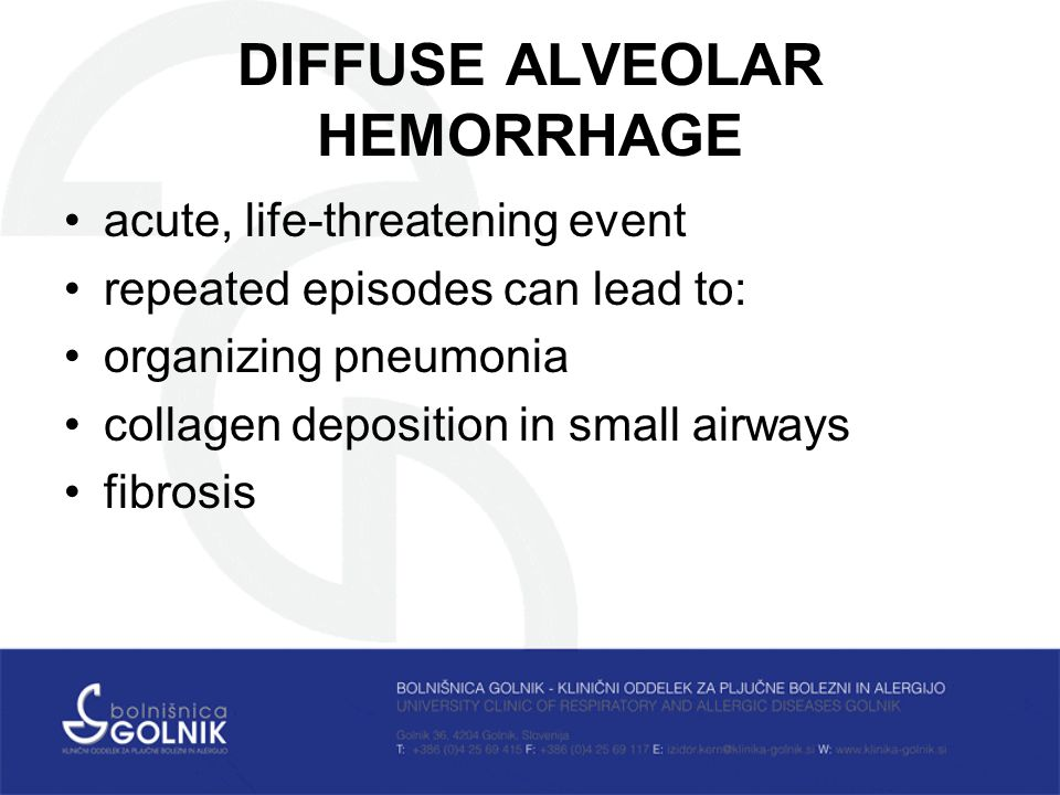 DIFFUSE ALVEOLAR HEMORRHAGE acute, life-threatening event repeated episodes can lead to: organizing pneumonia collagen deposition in small airways fibrosis