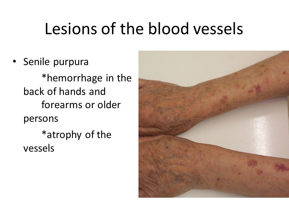 Hemorrhagic diseases  Lesions of the blood vessels Lesions