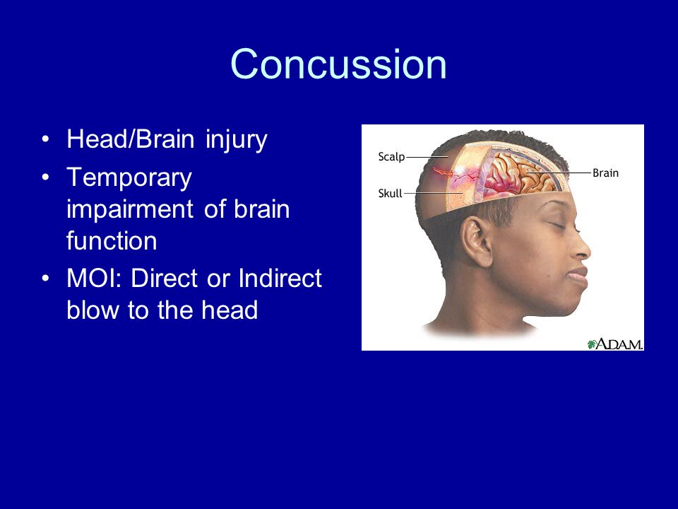 Concussion Head/Brain injury Temporary impairment of brain function MOI: Direct or Indirect blow to the head