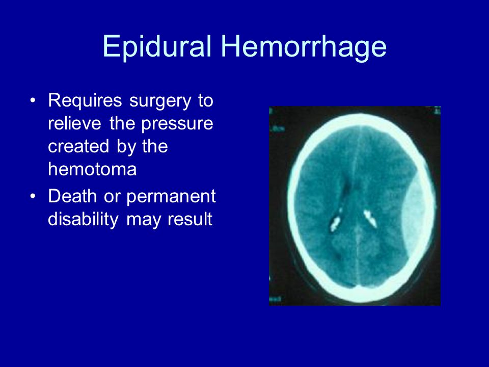 Epidural Hemorrhage Requires surgery to relieve the pressure created by the hemotoma Death or permanent disability may result