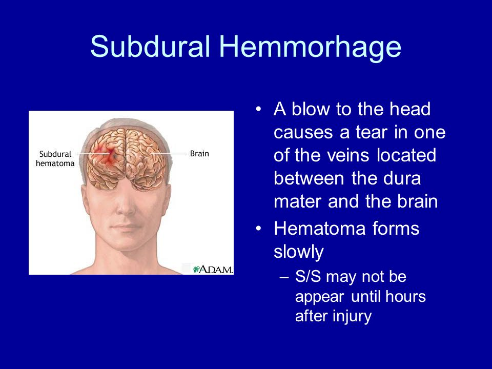 Subdural Hemmorhage A blow to the head causes a tear in one of the veins located between the dura mater and the brain Hematoma forms slowly –S/S may not be appear until hours after injury