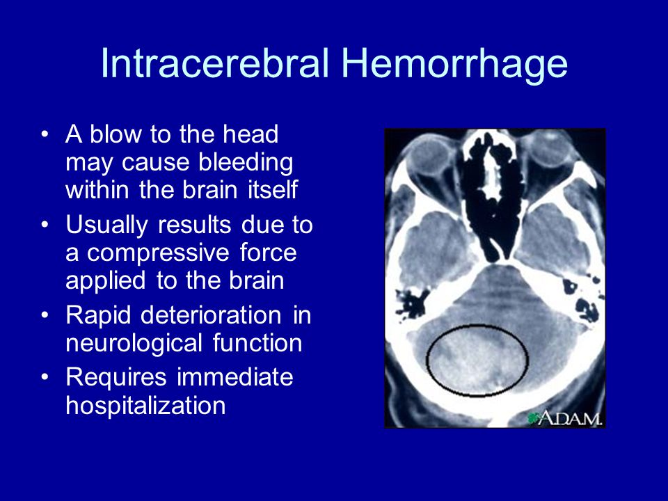 Intracerebral Hemorrhage A blow to the head may cause bleeding within the brain itself Usually results due to a compressive force applied to the brain Rapid deterioration in neurological function Requires immediate hospitalization