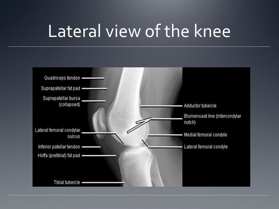 Knee Anatomy The knee is the largest joint in the body. The knee is ...