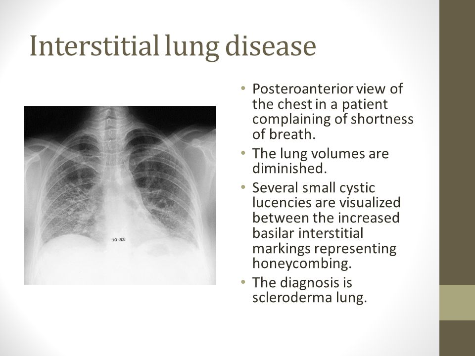 Interstitial lung disease Posteroanterior view of the chest in a patient complaining of shortness of breath.