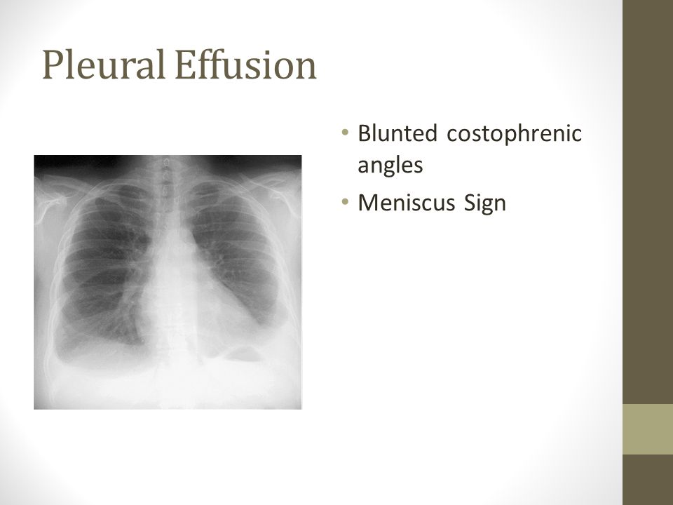 Pleural Effusion Blunted costophrenic angles Meniscus Sign