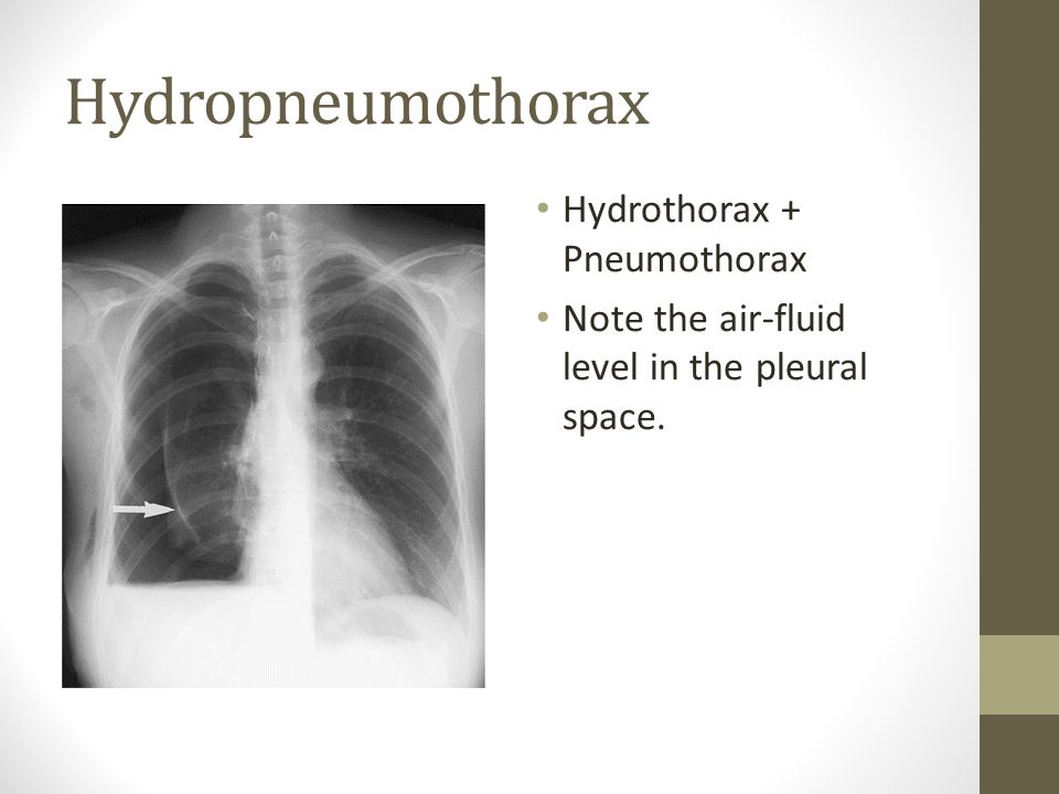 Hydropneumothorax Hydrothorax + Pneumothorax Note the air-fluid level in the pleural space.