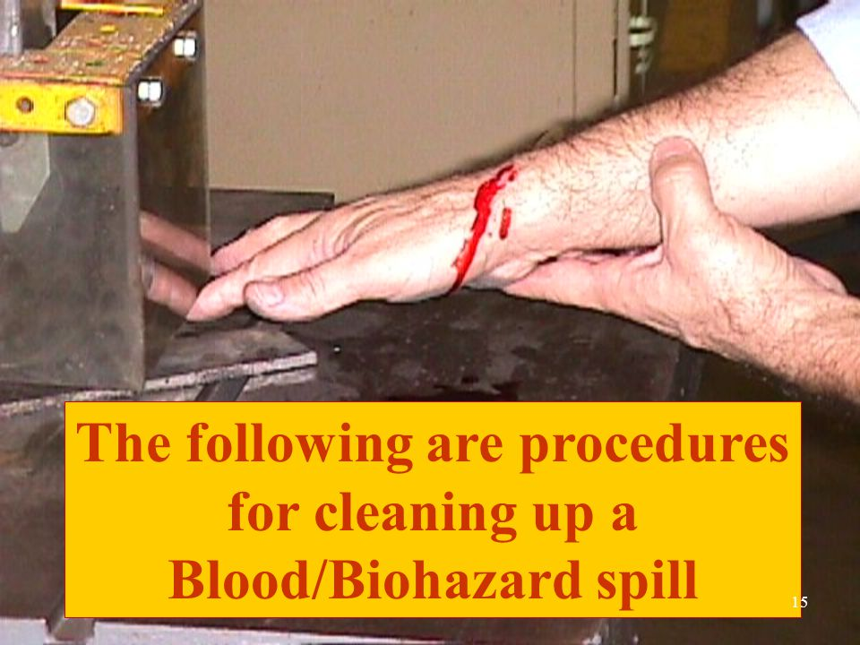 The following are procedures for cleaning up a Blood/Biohazard spill 15
