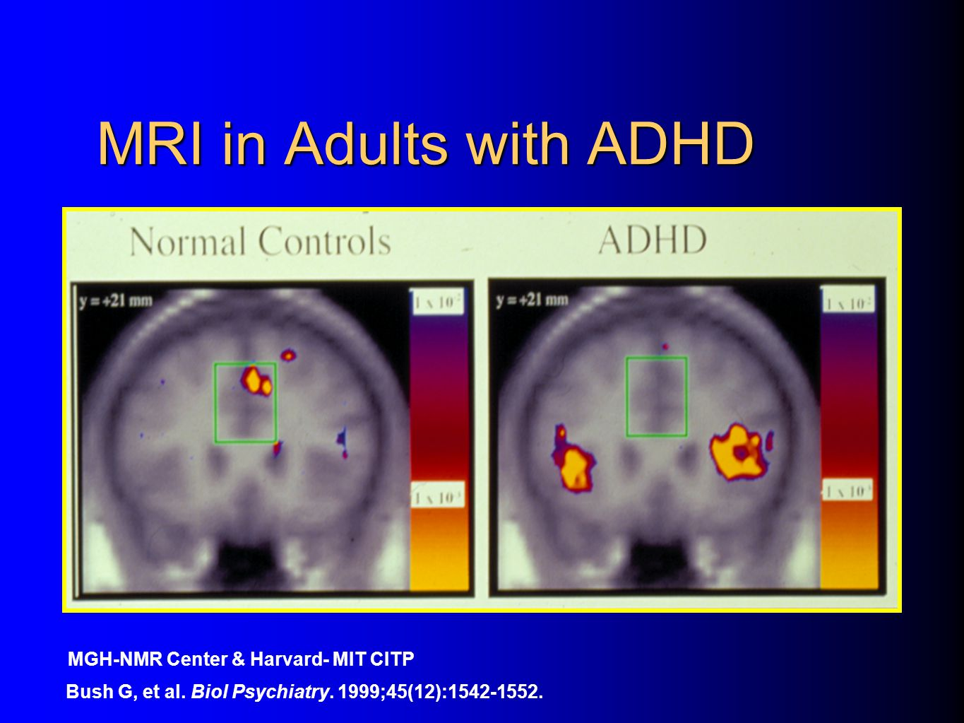 ADHD Overview Jeanette E Cueva MD History