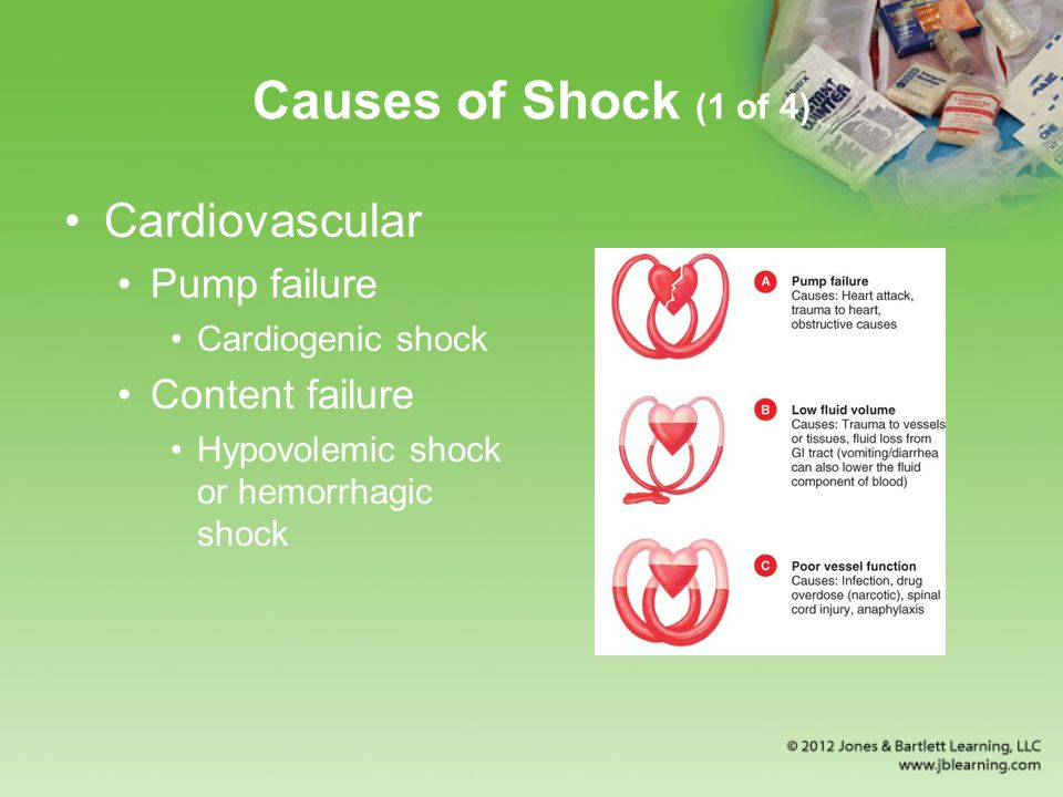 Causes of Shock (1 of 4) Cardiovascular Pump failure Cardiogenic shock Content failure Hypovolemic shock or hemorrhagic shock