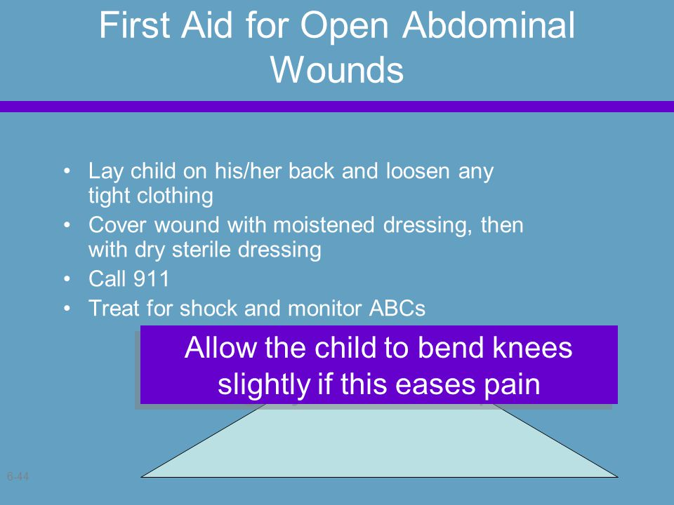 6-44 First Aid for Open Abdominal Wounds Lay child on his/her back and loosen any tight clothing Cover wound with moistened dressing, then with dry sterile dressing Call 911 Treat for shock and monitor ABCs Allow the child to bend knees slightly if this eases pain