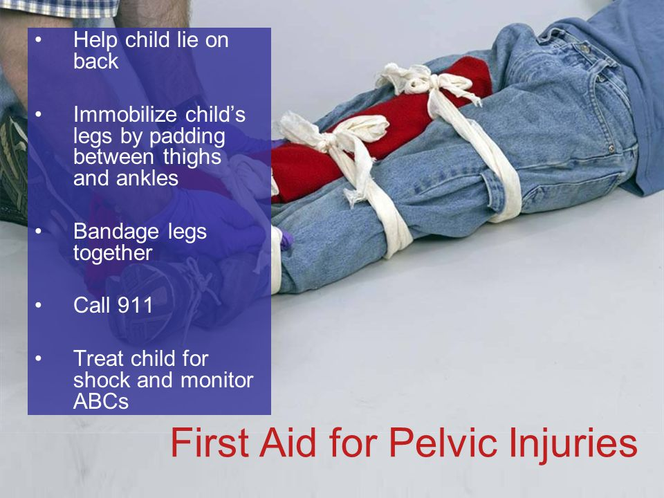 6-48 First Aid for Pelvic Injuries Help child lie on back Immobilize child's legs by padding between thighs and ankles Bandage legs together Call 911 Treat child for shock and monitor ABCs
