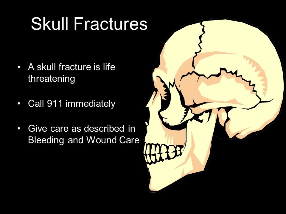 Skull Fractures A skull fracture is life threatening Call 911 immediately Give care as described in Bleeding and Wound Care