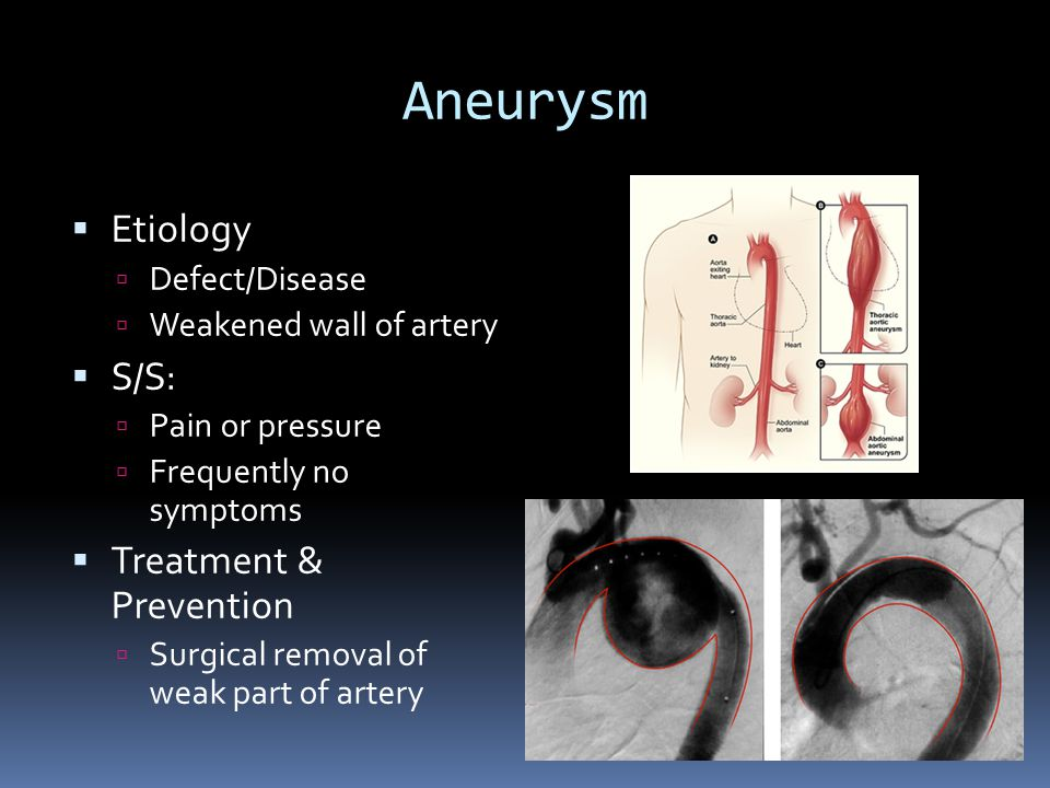Aneurysm  Etiology  Defect/Disease  Weakened wall of artery  S/S:  Pain or pressure  Frequently no symptoms  Treatment & Prevention  Surgical removal of weak part of artery