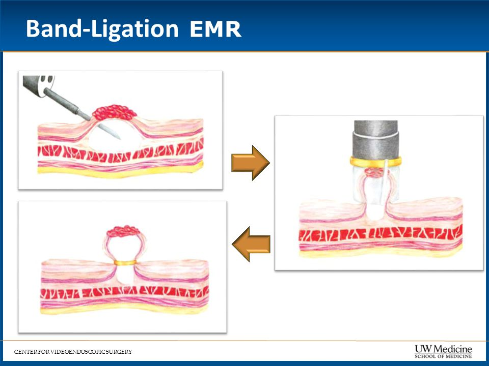 CENTER FOR VIDEOENDOSCOPIC SURGERY Band-Ligation EMR