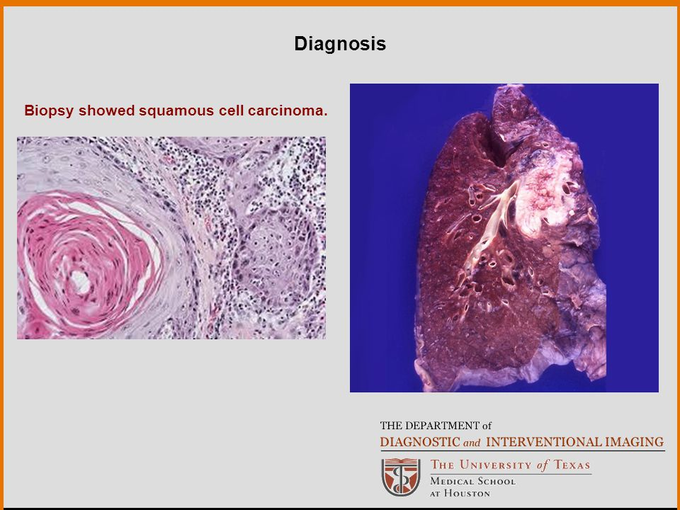 Biopsy showed squamous cell carcinoma. Diagnosis
