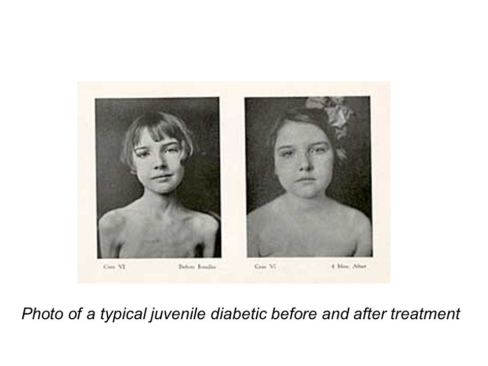Photo of a typical juvenile diabetic before and after treatment