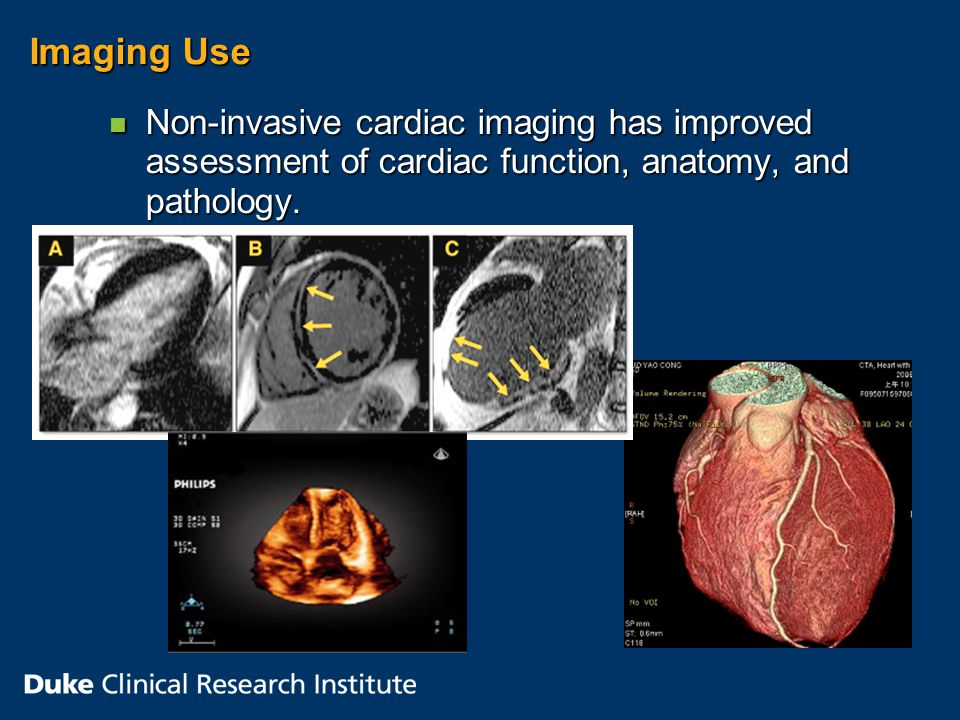 Imaging Use n Non-invasive cardiac imaging has improved assessment of cardiac function, anatomy, and pathology.