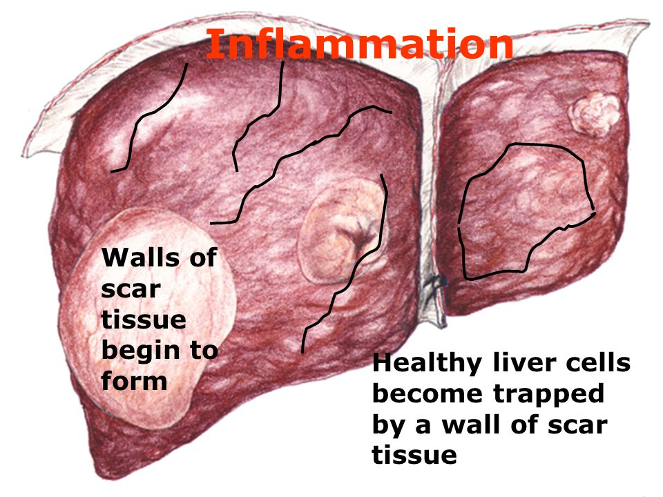 Inflammation Walls of scar tissue begin to form Healthy liver cells become trapped by a wall of scar tissue