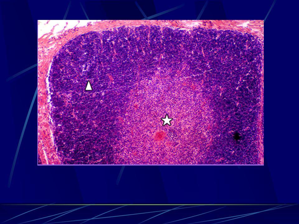 Immune System General Outline Lymphatic Organs Thymus Lymph Node