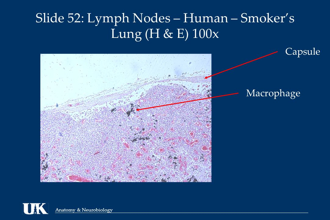 Anatomy & Neurobiology Slide 52: Lymph Nodes – Human – Smoker's Lung (H & E) 100x Macrophage Capsule