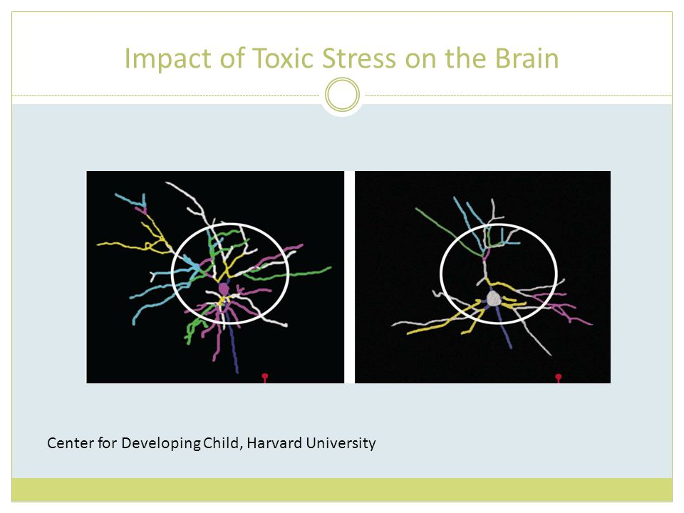 Impact of Toxic Stress on the Brain Center for Developing Child, Harvard University