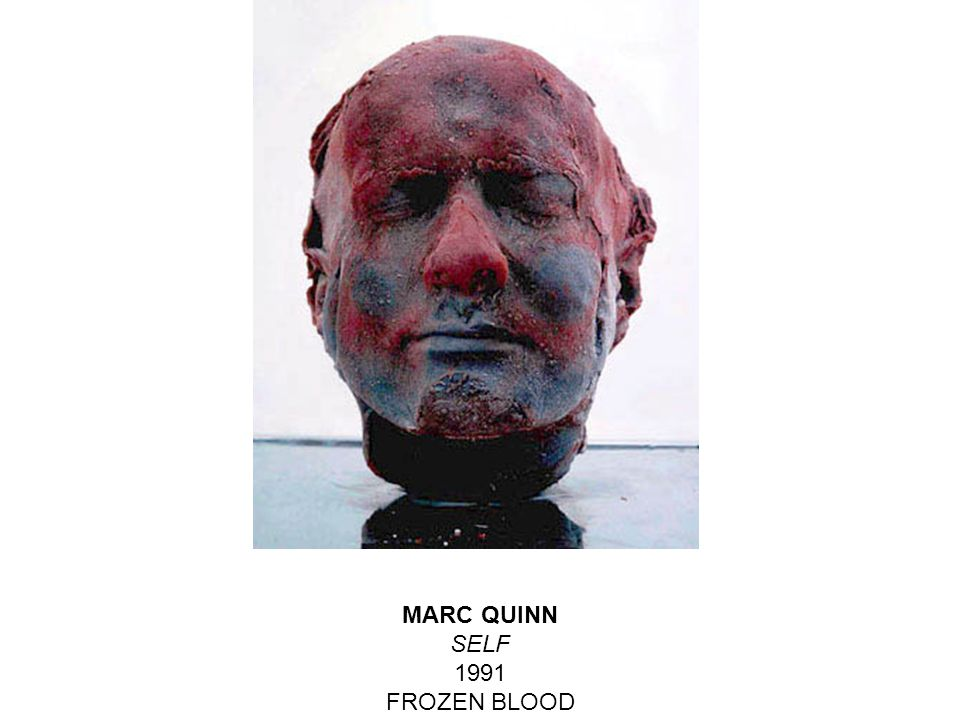 MARC QUINN SELF 1991 FROZEN BLOOD