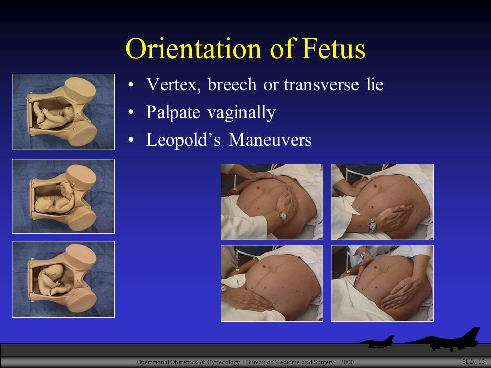 Operational Obstetrics & Gynecology · Bureau of Medicine and Surgery · 2000 Slide 13 Orientation of Fetus Vertex, breech or transverse lie Palpate vaginally Leopold's Maneuvers