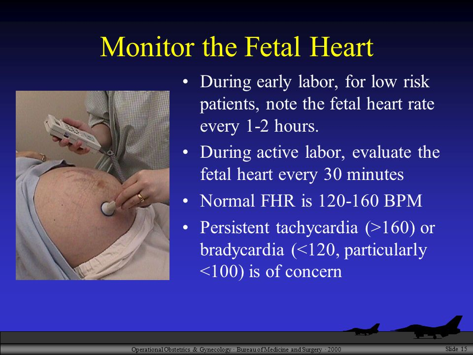 Operational Obstetrics & Gynecology · Bureau of Medicine and Surgery · 2000 Slide 15 Monitor the Fetal Heart During early labor, for low risk patients, note the fetal heart rate every 1-2 hours.