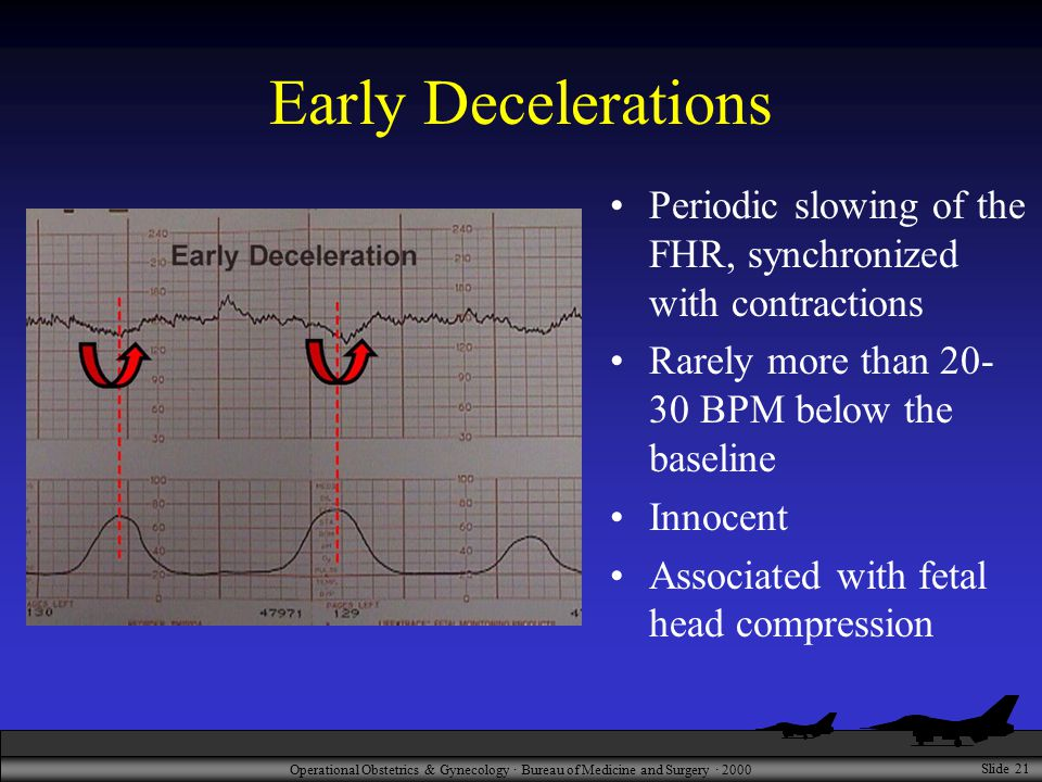 Operational Obstetrics & Gynecology · Bureau of Medicine and Surgery · 2000 Slide 21 Early Decelerations Periodic slowing of the FHR, synchronized with contractions Rarely more than BPM below the baseline Innocent Associated with fetal head compression
