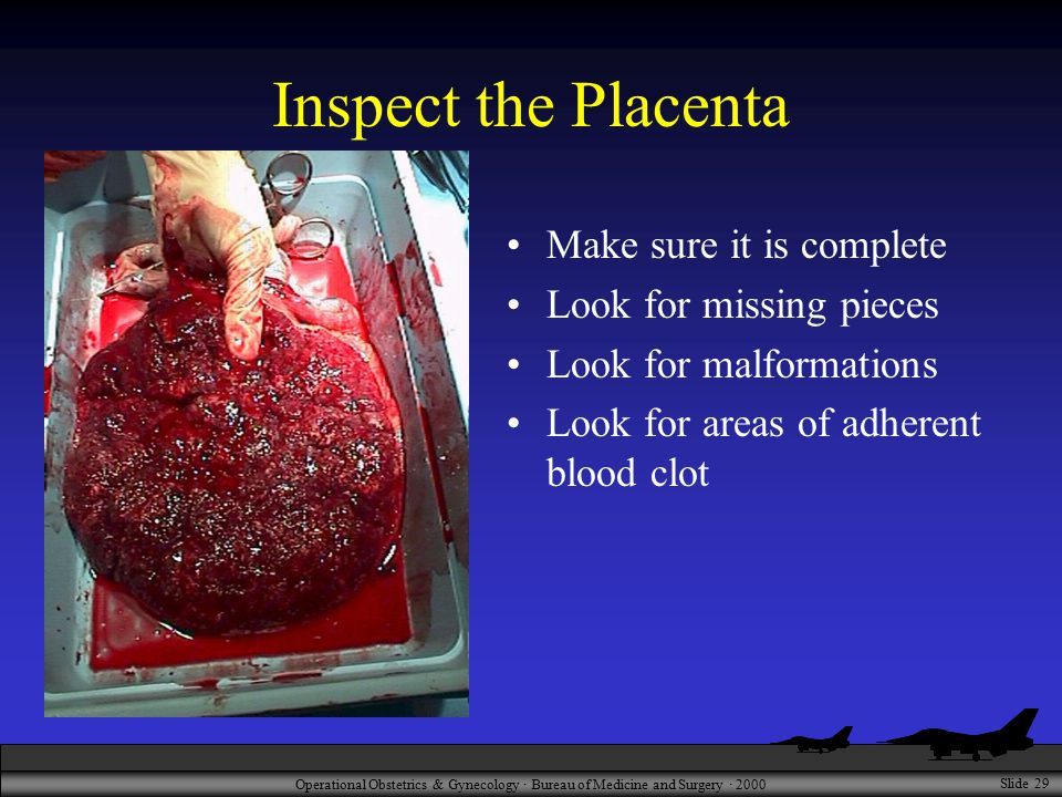 Operational Obstetrics & Gynecology · Bureau of Medicine and Surgery · 2000 Slide 29 Inspect the Placenta Make sure it is complete Look for missing pieces Look for malformations Look for areas of adherent blood clot